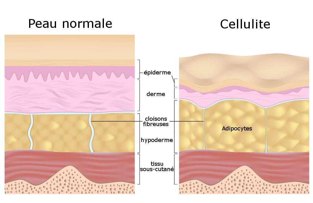 Qu'est-ce que la cellulite ? – Labodahlia